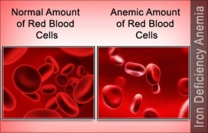 iron-deficiency-anemia-300x192